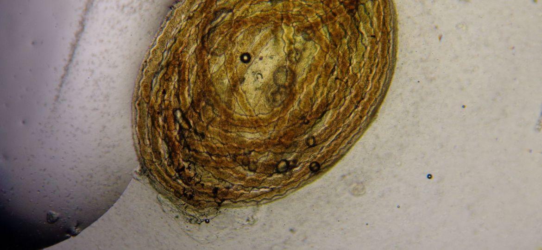 Pasmódio de Myxidium amazonense (filamentos) no interior da vesicula biliar de Corydoras melini.