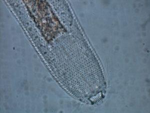 Foto de microscopia óptica da região anterior de Aspidiophorus sp., vista dorsal. Foto: André Garraffoni.